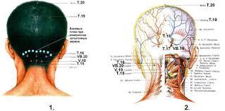 Массаж точек при боли в шейном отделе