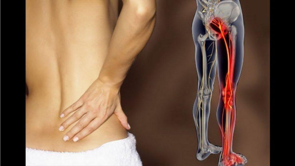 Терапия массажем при защемлении седалищного нерва